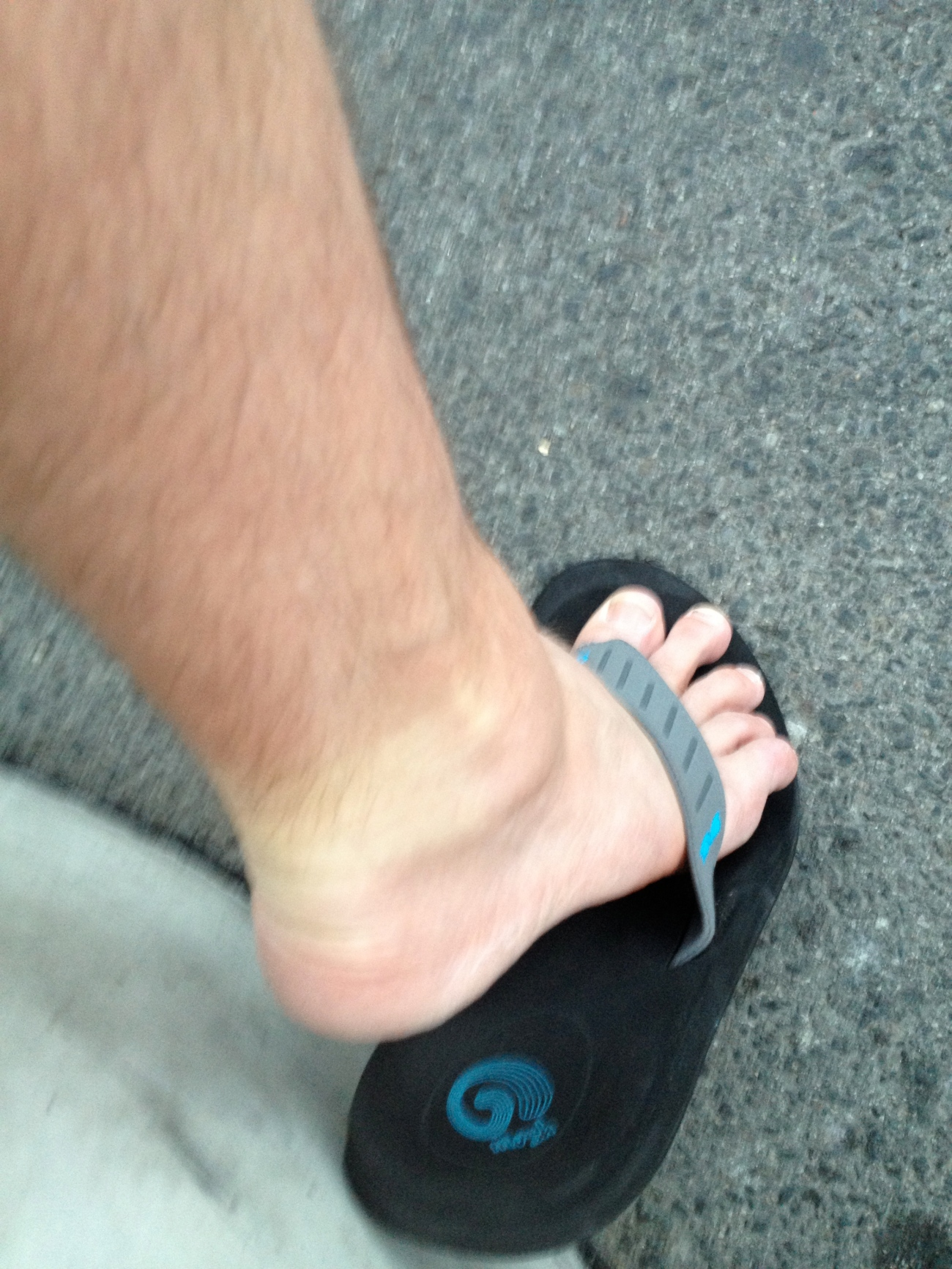 My right ankle is usually a dainty number, this swelling concerned me enough to take a picture of it.